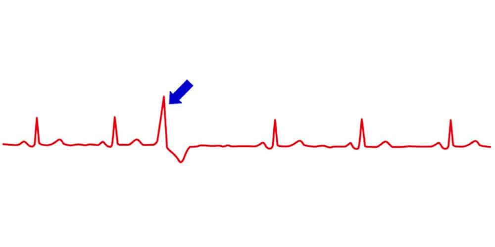 ECG with an extrasystole (blue arrow)