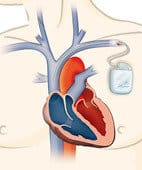 Sometimes the solution--a pacemaker